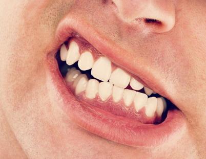Kauno miesto dantu implantavimas