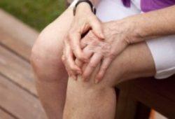 Moters kelio artrozė