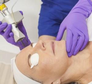 Dermatologas atlieka odos gydymą